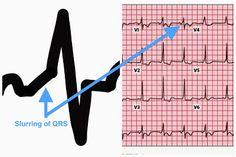 Accessory Pathways and Wolff Parkinson White Explained - Cardiac Arrhythmias