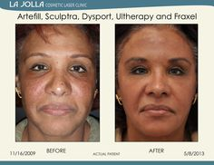 Patient treated with Artefill, Sculptra, Dysport, Ultherapy and Fraxel at La Jolla Cosmetic Laser Clinic.