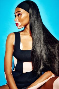 Winnie-Harlow-GQ-Portugal-Pictures-2015-08