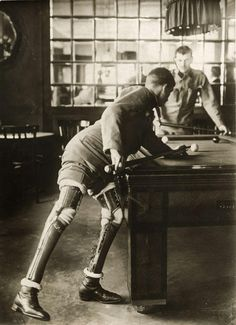World War I soldier, a double amputee, plays billiards with prosthetic legs in 1915.