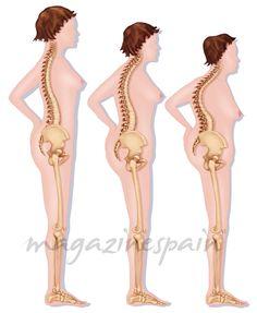 Divulgando en Salud: La fractura de cadera