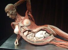 """The one in which i am most interested. The 8 month pregnant women, this """"double tragedy"""" is indeed the """"most emotional specimen"""" in the exhibit Gunther von Hagens's work"""