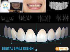 Niềng răng cho người bị móm bằng công nghệ Braces 6S