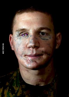 Kyle Karpenter threw himself on a grenade to save a friend. This is him today