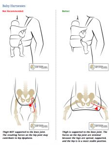 Choosing a baby carrier that fully supports the legs is optimal for healthy hip development.