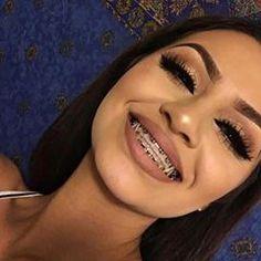 Best Ideas how to look pretty with braces to get Cute Girls With Braces, Cute Braces Colors, Braces Smile, Teeth Braces, Eyelash Enhancer, Eyelash Sets, Black Braces, Braces Tips, Getting Braces