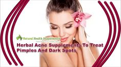 Dear friends in this video we are going to discuss about herbal acne supplements to treat pimples and dark spots. You can find more details about Golden Glow capsules at http://www.naturalhealth-supplements.com/acne-treatment.htm If you liked this video, then please subscribe to our YouTube Channel to get updates of other useful health video tutorials.