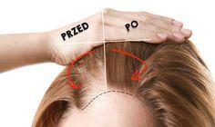 Beauty Make Up, Diy Beauty, Beauty Hacks, Diy Spa, Hair Loss, Short Hair Cuts, Health And Beauty, Makeup Tips, Hair Care