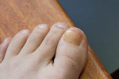 How to Get Rid of Brown Toenails