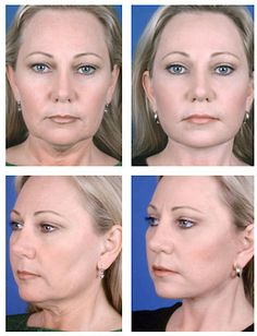 Amusing opinion facial plastic and cosmetic surgery good question