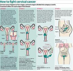 Image result for cervical cancer stage 1b2