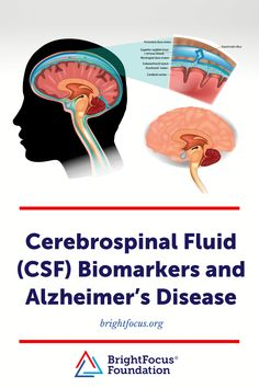 Learn how scientists are exploring biomarkers in the cerebrospinal fluid to screen for Alzheimer's disease. Dura Mater, Cerebral Cortex, Cerebrospinal Fluid, Alzheimer's And Dementia, Alzheimers, Scientists, Exploring, Explore, Research