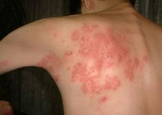 Herpes zoster, Shingles, is a neural disorder caused by the same virus responsible for chicken pox – Varicell-Zoster virus. After getting rid of chicken pox, the virus never completely vanishes, lying inactive near the spinal cord and brain. If it becomes active again, it will cause agonizing abdominal rash in the form of red blisters shaped as stripes.
