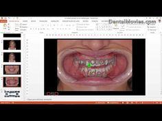 Digital Smile Design  Christian Coachman & Livio Yoshinaga  PART 3/4 - YouTube