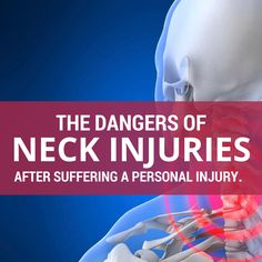 The Dangers Of Neck Injuries After Suffering A Personal Injury. If you have suf. Crick In Neck, Whiplash Injury, Neck Injury, Accident Injury, Personal Injury Lawyer, Medical, Motor Vehicle, Personal Care, Muscles