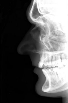 Nasal bone x ray anatomy