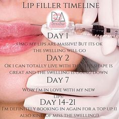 What to expect when you have lip fillers fillers kiss natural shape women lipstick Cosmetic Fillers, Facial Fillers, Botox Fillers, Dermal Fillers, Lip Fillers, Cheek Injections, Facial Esthetics, Hyaluron Filler, Facial Anatomy