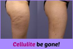 Cellulite Be Gone!