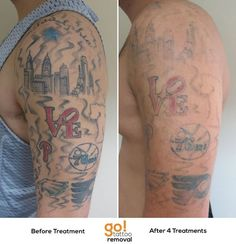Big Laser Tattoo Removal