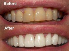 teeth whitening treatment at bodevolution