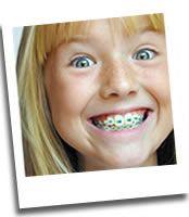 Braces smile @san pan Antonio #orthodontist