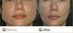 Recontouring of strong jaw at Glo Medspa...under $200