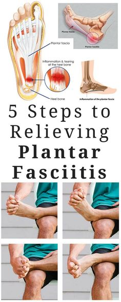 5 Steps To Relieving Plantar Fasciitis Pain
