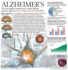 Alzheimer's affects 1 in 9 Americans 65 and older.