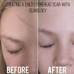 14 Best Scarology Scar Cream Kit Images Scarology Scar Cream Scar