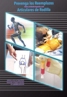 Prevenga las prótesis en las articulaciones por Artrosis www.unidadortopedia.com