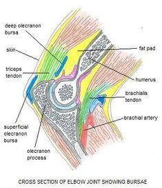 Image result for olecranon bursitis