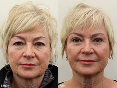 #Eyelid surgery can correct drooping upper lids & puffy bags below the eyes. Free consultation http://www.drdarm.com/contact/ See the rest of her before and after pictures here: https://flic.kr/s/aHsjZLFkEM