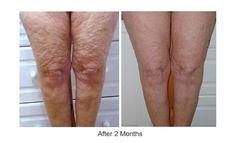 galvanic body spa - Antes y después de 2 meses de tratamiento. yamilagrassano@hotmail.com