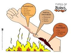 Burns...  EMT  Paramedic Practice Tests ONLINE! Hundreds of concise guides in our study area! Challenge yourself on our National Registry Simulator! The FUN way to prepare!!! Pass the NREMT on your First Try! medictests.com/join Nursing Board, Nursing Tips, Nursing Programs, Rn Programs, Types Of Burns, Nursing Information, Medical Surgical Nursing, Nursing Diagnosis, Icu Nursing