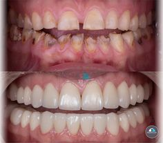 Look at this amazing transformation! Transform your life with a smile makeover at the best dentist in Tijuana. We offer different cosmetic dental treatments that can improve not only your smile but your confidence. You can contact us at ⬇ (619) 488-1557 📞 (664) 634-3978 📞 frontdesk@advancedsmilesdentistry.com 📧 www.advancedsmilesdentistry.com 🌐 . . . . . #tijuanadentist #AdvancedSmiles #setofdentalveneers#veneers #dentalveneers #cosmeticdentistry #smiledesign #cosmeticdentist #whiteteeth…