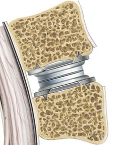 Artificial Disc Replacement Spinal Nerves Anatomy, Nerve Anatomy, Lumbar Disc, Radiculopathy, Back Surgery, Degenerative Disc Disease, Laser Surgery, Spinal Stenosis, Spine Health