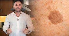 Las manchas en la piel son en gran parte un problema estético que puede afectar su autoestima. Generalmente aparecen en la cara, los brazos, los hombros y piernas y van aumentado conforme a la edad. Muchas personas tratan de eliminarlas con lociones y cremas comerciales, pero usted debe saber que existe un remedio natural sencillo …