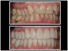 Cosmetic Smile Makeover. Full Mouth Reconstruction with porcelain veneers and crowns. Before and after Cosmetic Dentistry.  Dr. Nicol R. Cook, DDS ~San Diego,CA Cosmetic Dentist. Call today for an appointment (858) 673-0141 or visit us at www.smilesbydrcook.com