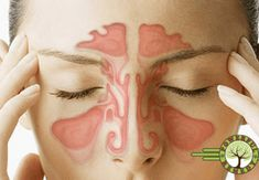 Stuffy Nose Remedies Have you ever had a stuffy nose? This could be the result of a sinus infection or a cold. You see - Have you ever had a stuffy nose? This could be the result of a sinus infection or a cold. You see Remedios Congestion Nasal, Congestion Relief, Chest Congestion, Sinus Relief, Flu Remedies, Natural Remedies, Hair Remedies, Infection Des Sinus, Turmeric Detox