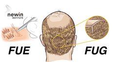 Newin FUE and FUG HAIR TRANSPLANTATION