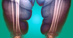 X-ray of an obese persons legs (source: galloimages)