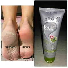 Oriflame feet up Advanced cracked heel repair and soothing cream! Intensive cream with urea,cocoa butter, panthenol and minerals blend! To Help restore and protect the condition of rough cracked skin. Visible improvement in just 3 days. Dry Feet Remedies, Giordani Gold Oriflame, Oriflame Business, Eye Make Up Videos, Oriflame Beauty Products, Smooth Feet, Tips For Oily Skin, Skin Care, Makeup Products