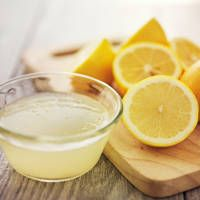 Here are some home remedies for dandruff using lemon juice. Use of lemon juice for dandruff is popular as it is a rich source of citric acid and helps eliminate dandruff from the roots. Home Remedies For Dandruff, Natural Remedies, Cold Remedies, Health Remedies, Getting Rid Of Dandruff, Lemon Diet, Lemon Water, Rose Water, Baking Soda