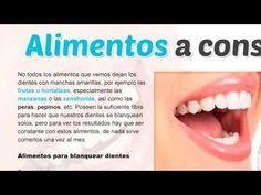 blanqueamiento de dientes casero rapido - Buscar con Google