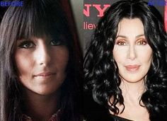 10 WORST CASES OF CELEBRITY PLASTIC SURGERY GONE WRONG, DESTROYED THEIR LOOKS! - The Top Ten