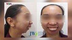 Cắt 4 đoạn hàm chỉnh khiếm khuyết gương mặt nặng http://www.youtube.com/watch?v=9l8OLCPdkyI