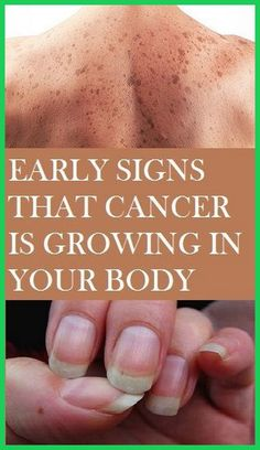 Signs Of Ovarian Cancer, Ovarian Cancer Symptoms, Cancer Sign, Healthy Lifestyle Tips, Healthy Tips, Healthy Soda, Healthy Women, Transvaginal Ultrasound