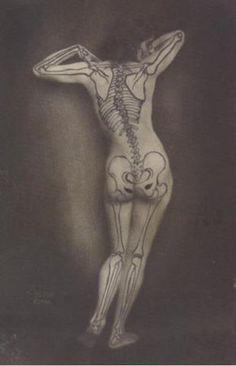 "wnycradiolab: "" hurray-sleep: ""  ghastlydelights: ""  spidertales: ""  ravengoodwoman: ""  vensuberg: ""  billyjane: ""  Nu au squelette by Ergy Landau,1930 "" """