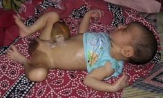Lets pray for Arijit from Siliguri a 5 days old baby who is suffering from OMPHALOCEL   Arijit a 5 days old sweet baby who suffers from 'OMPHALOCEL' (An omphalocele (British English: omphalocoele) is a rare abdominal wall defect in which the intestines liver and occasionally other organs remain outside of the abdomen in a sac because of a defect in the development of the muscles of the abdominal wall (exomphalos). We just admited him in C.S.S.HOSPITAL Matigara for his proper treatment and…