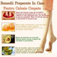 Remedii preparate in casa pentru calcaie crapate Good To Know, The Cure, Health Fitness, Hair Beauty, Medical, Exercise, Healthy Recipes, Yoga, Tips